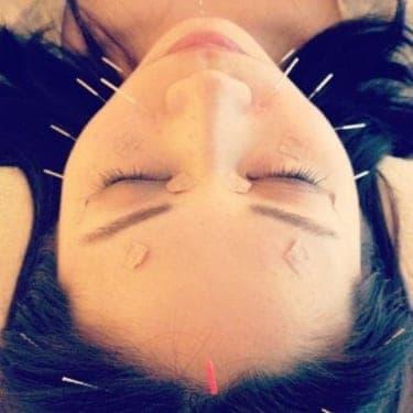 美容鍼、初体験!